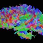 Alzheimer's, Dementia